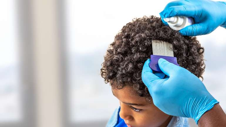 Looking for Head Lice Treatments in Fort Worth?